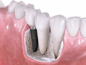 Danties implantavimas